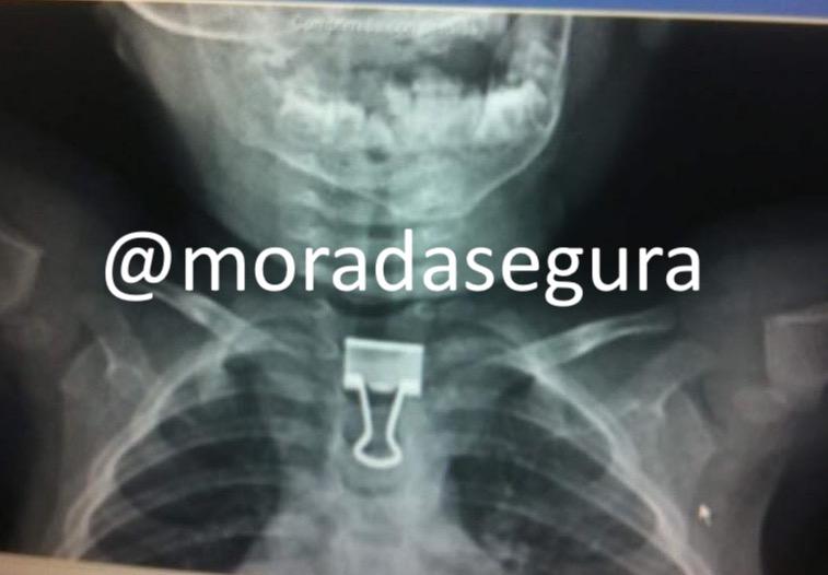 clip rx radiografia
